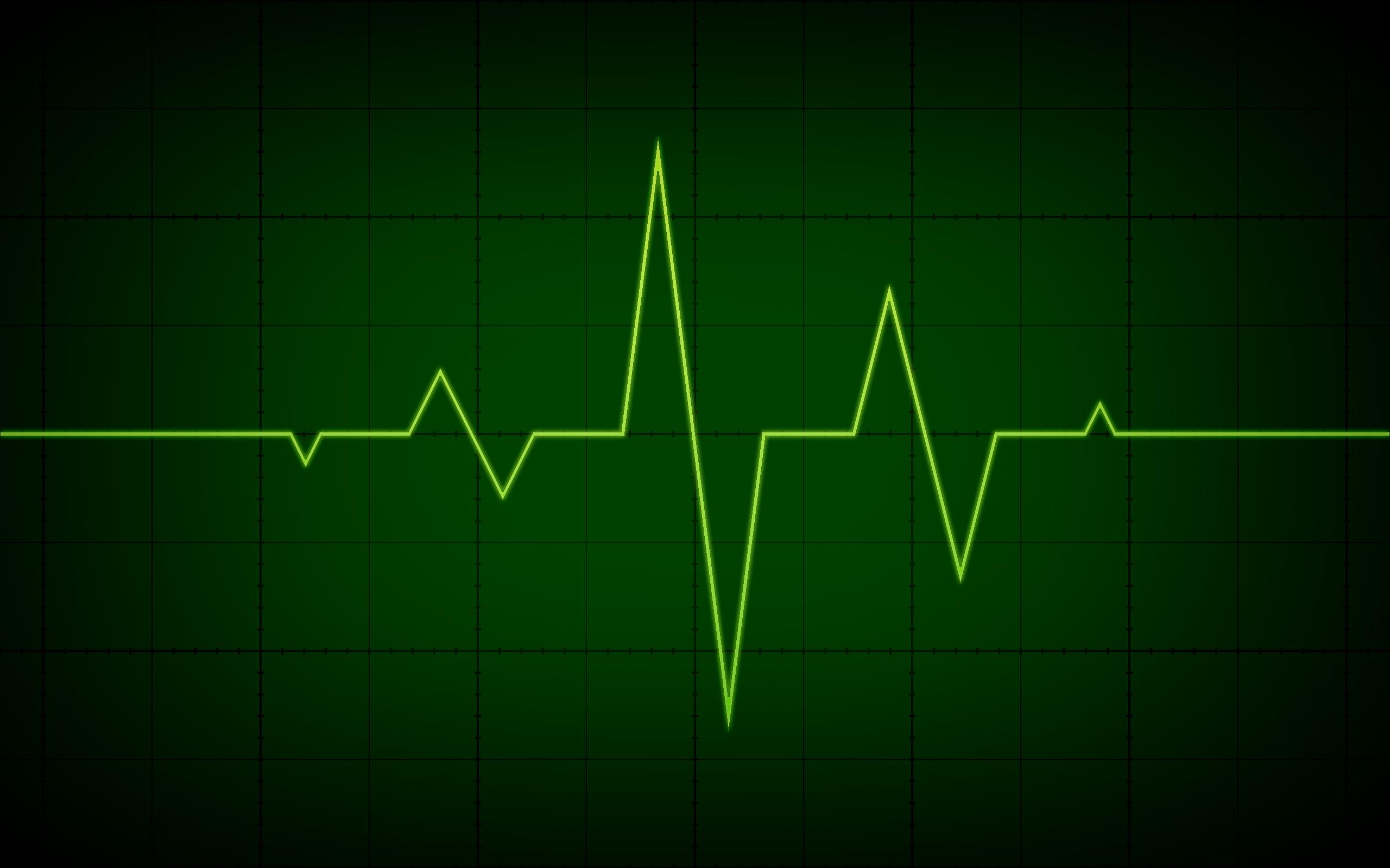Electrocardiogram,