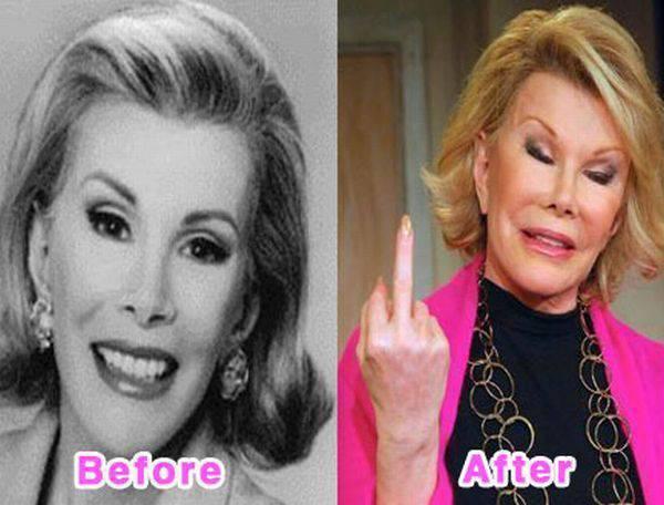 Gwiazdy przed i po operacjach plastycznych 11