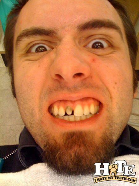 Ząbki, czyli problemy z uzębieniem 26