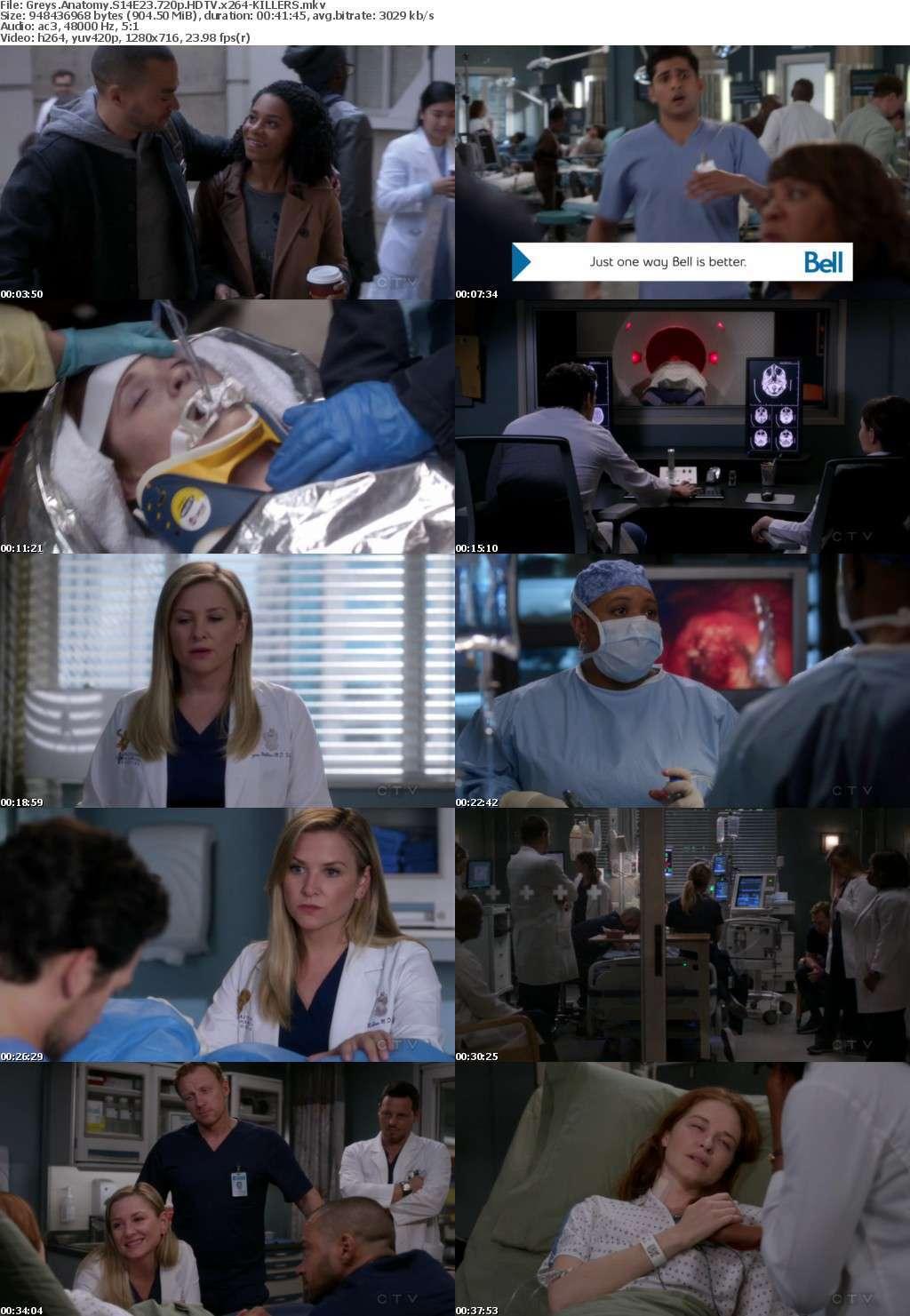 Greys Anatomy S14E23 720p HDTV x264-KILLERS